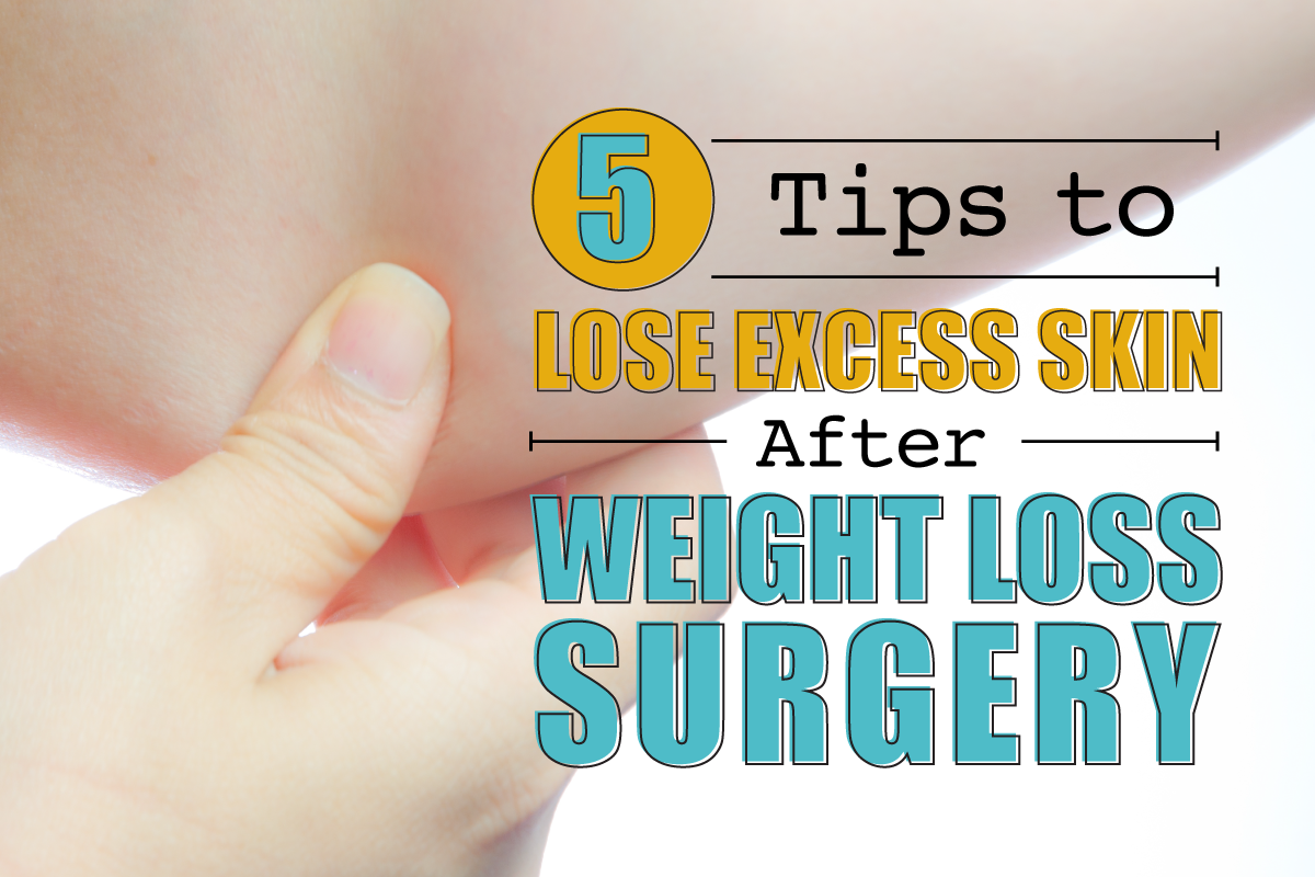 5 Tips To Shed Excess Skin After Weight Loss Surgery Dr Steven Fass